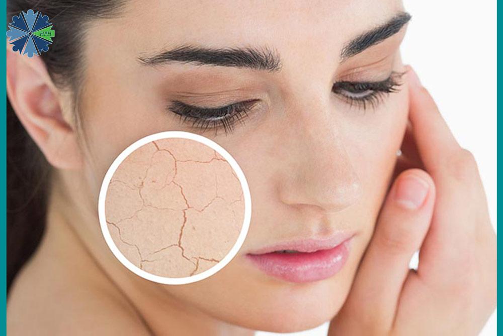 مضرات کرم مرطوب کننده برای صورت