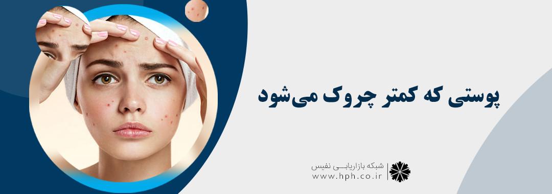راهنمای محافظت از پوست چرب